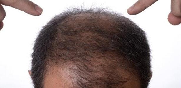 Medikamente gegen erblich bedingten Haarausfall